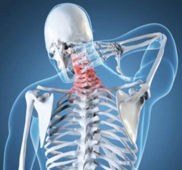 cervicalgia o dolore al collo cause e risoluzioni