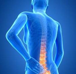 dolori alla schiena risolti con icewave e seduta di applicazione