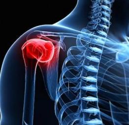 algia o dolori alla spalla risolti con icewave